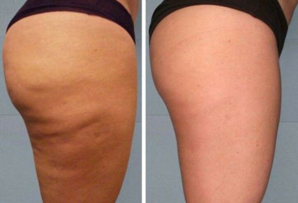 how to remove cellulite on thighs at home