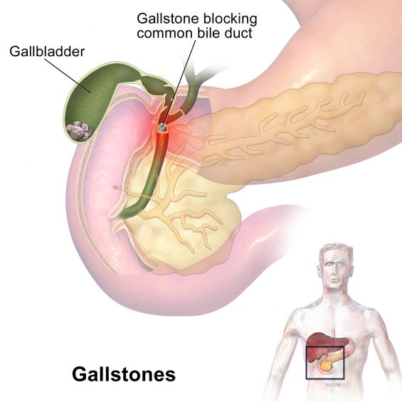 Gallstones study image